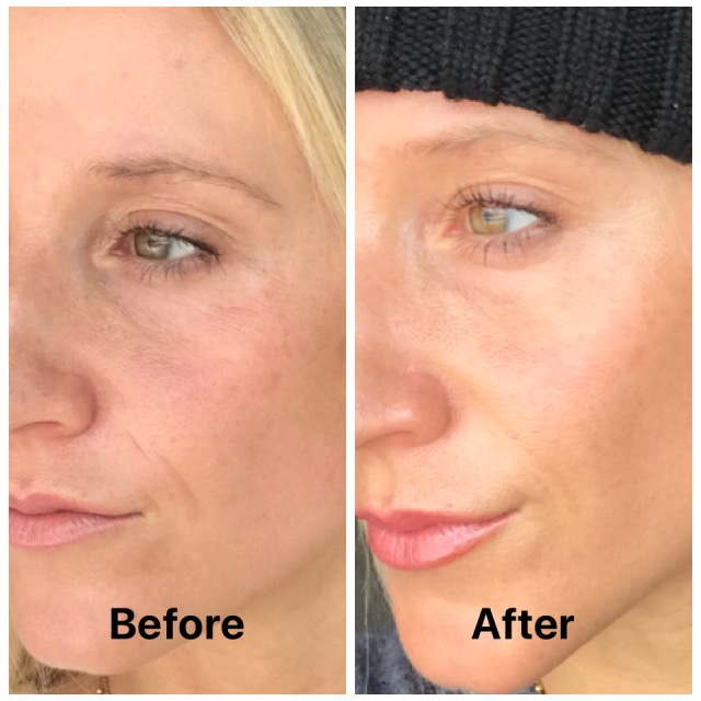 Clear Brilliant Anti Aging Laser Treatment With Breckenridge
