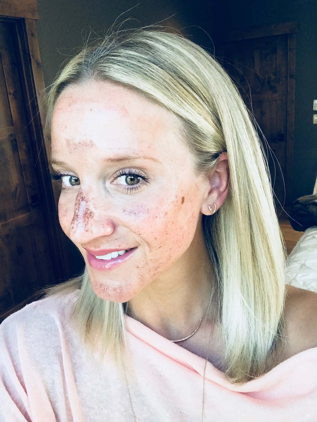 Ipl Intense Pulsed Light Treatment Review Antlers And Rose